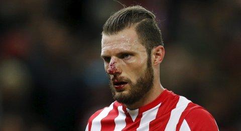Stoke's Erik Pieters fikk seg en smell i ansiktet i kampen mot Chelsea. Tirsdag kveld tror vi Stoke går på en smell mot Liverpool.