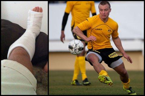 UNDER KNIVEN: Fredrik Gulbrandsen skal opereres etter beinbruddet han pådro seg i den venstre foten under en joggetur. FOTO: PRIVAT / DIGITALSPORT
