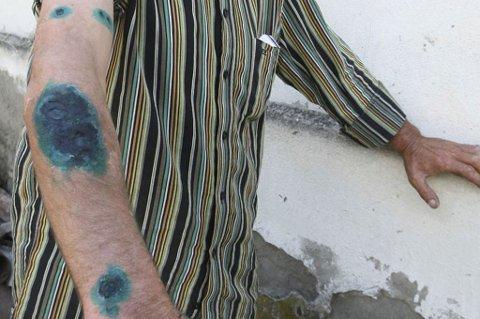 FRYKTER SMITTE:Miltbrann er tidligere brukt som biologisk stridsmiddel ved å spre smitte til dyr og ved luftspredning blant mennesker i en krigs- eller terrorsituasjon. Resultatet er svarte skorper på store deler av kroppen, slik som på bildet. Nå risikerer norske injiserende misbrukere å bli smittet av bakterien.