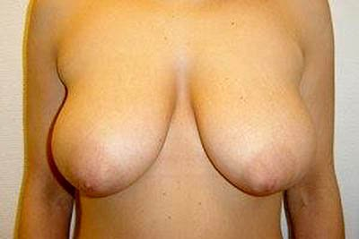 sortsex ømme bryster før folk