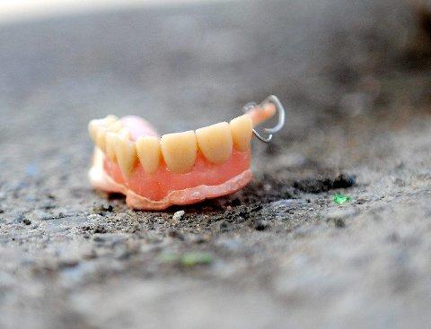 Kjenner du igjen disse tennene, kan de hentes i resepsjonen til Sandefjords Blad. FOTO: ANDERS MEHLUM HASLE