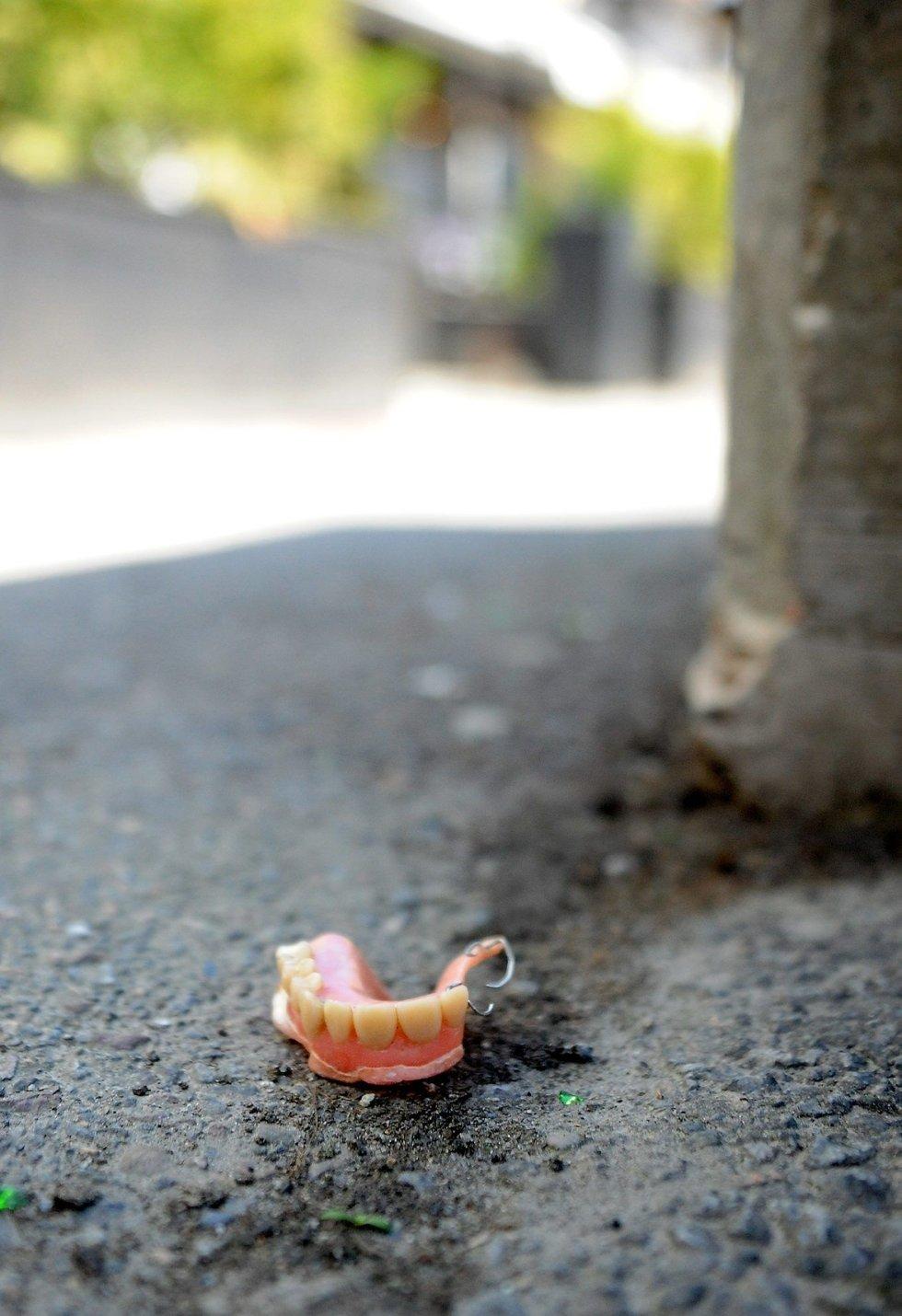 Akkurat slik lå gebisset som Johnny Peeters fant på Aagaards plass. FOTO: ANDERS MEHLUM HASLE