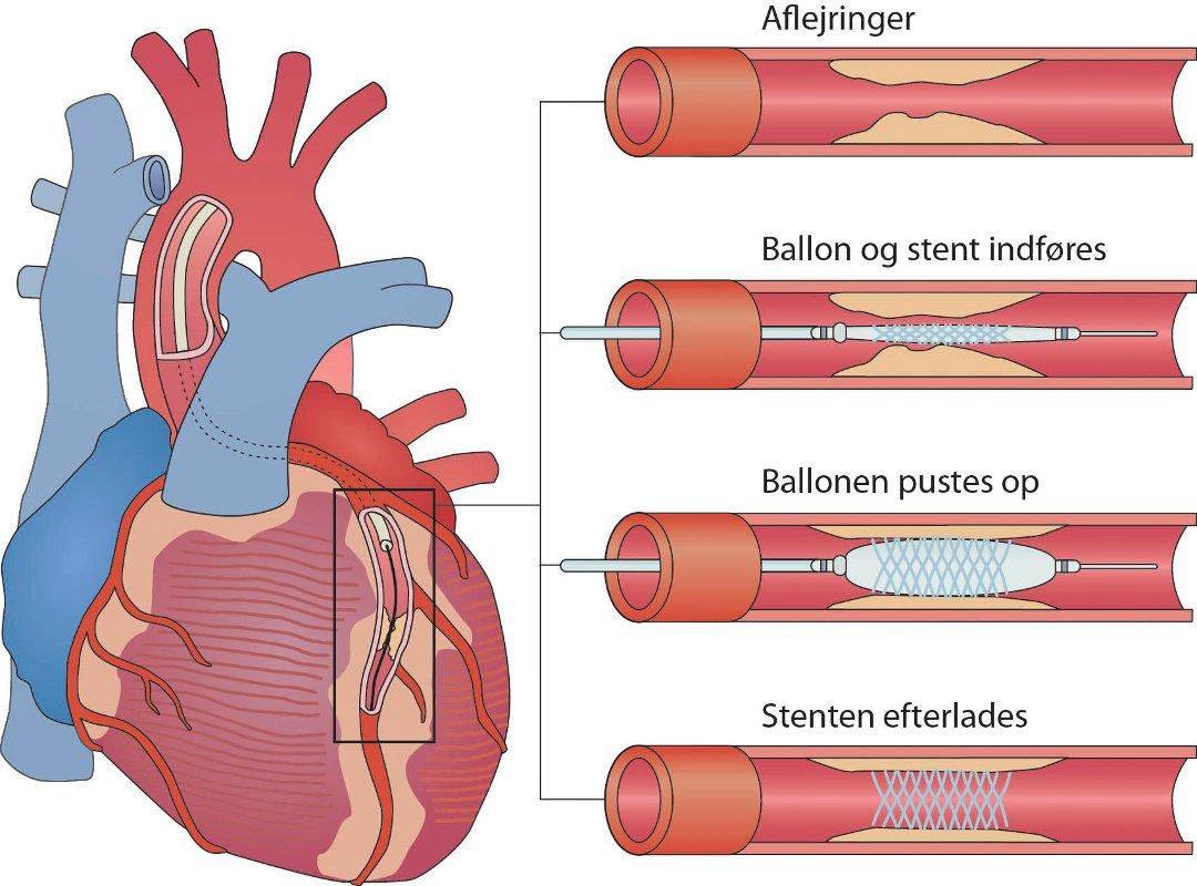 hjerteforeningen opskrifter