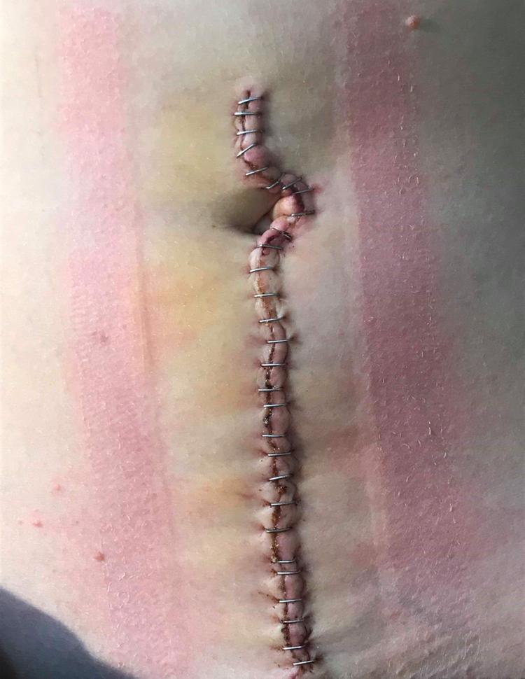 STIFTET: Slik så magen til Vilde ut etter operasjonen.