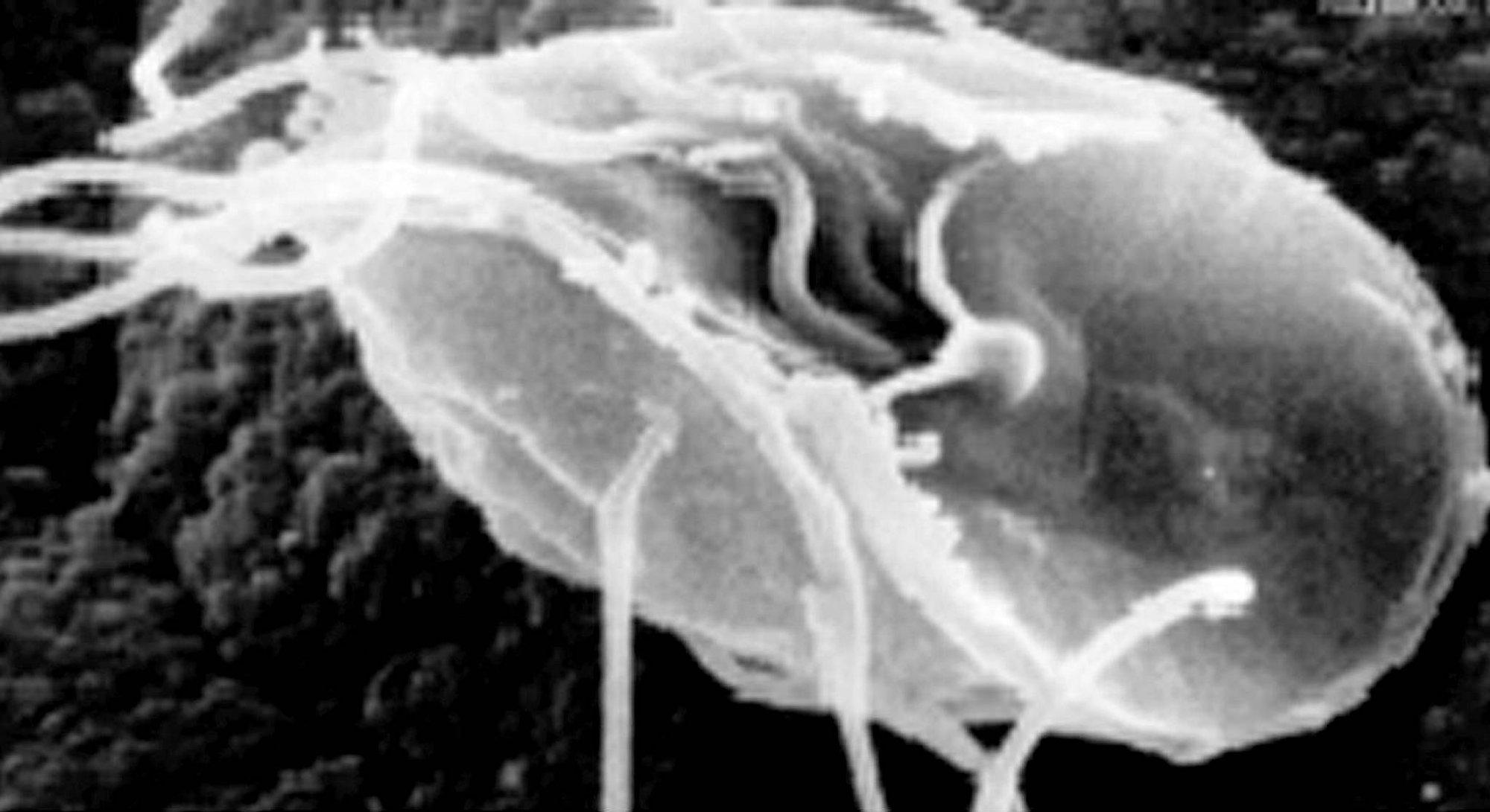 a pinwormák legújabb gyógyszere bél vagy férgek