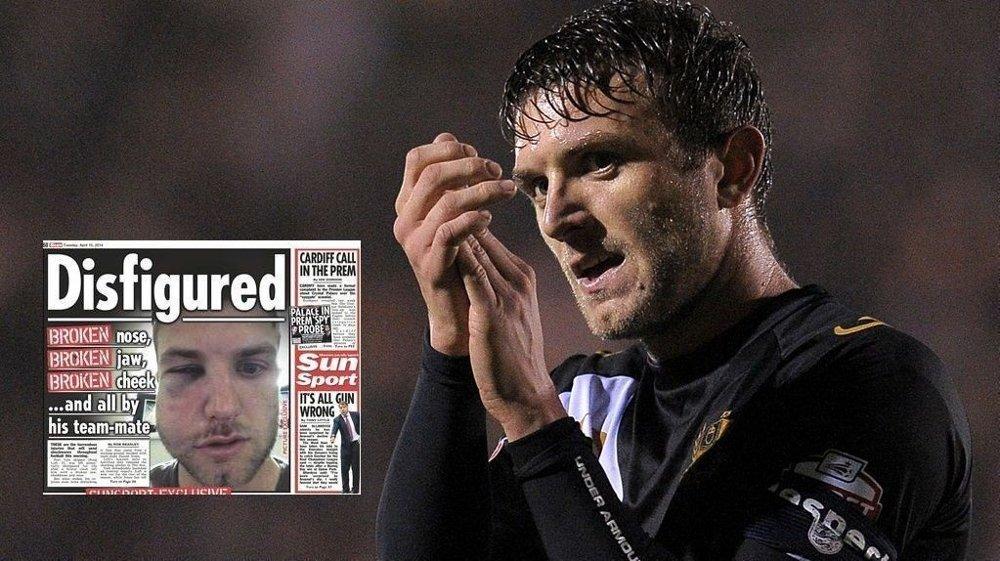 SKAMSLÅTT: Port Vale-spilleren Doug Loft ble skamslått av lagkameraten Daniel Jones.