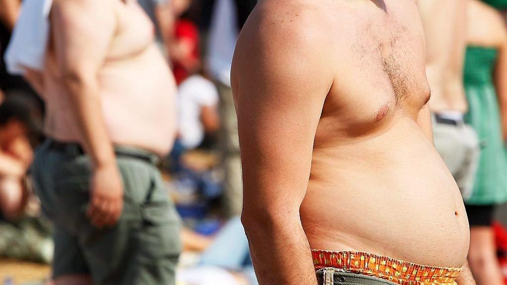 LIVSSTIL: Diabetes 2 har blitt kalt en livsstilsykdom fordi den kobles med overvekt og manglende mosjon. Nå viser norsk forskning at også arvelige gener er årsaken.