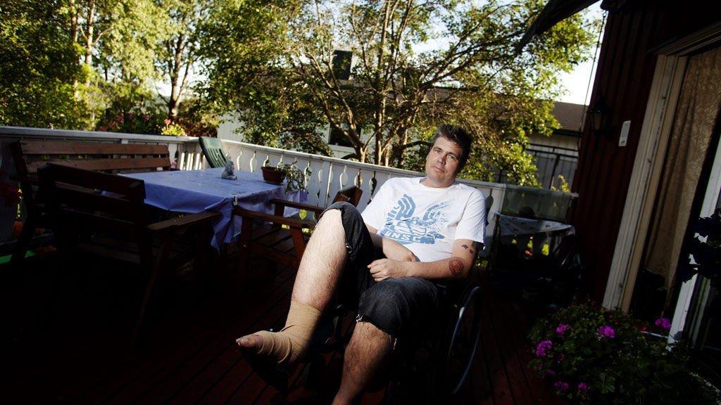 MARERITT: Tommy Nilsen fra Fjellhamar opplevde marerittet da han måtte operere etter flere brudd i beinet i sommer. Han måtte faste flere dager i strekk fordi operasjonen ble utsatt, og i tillegg fikk han verken smertestillende eller rom da operasjonen var ferdig. I dag er han hjemme og på bedringens vei.