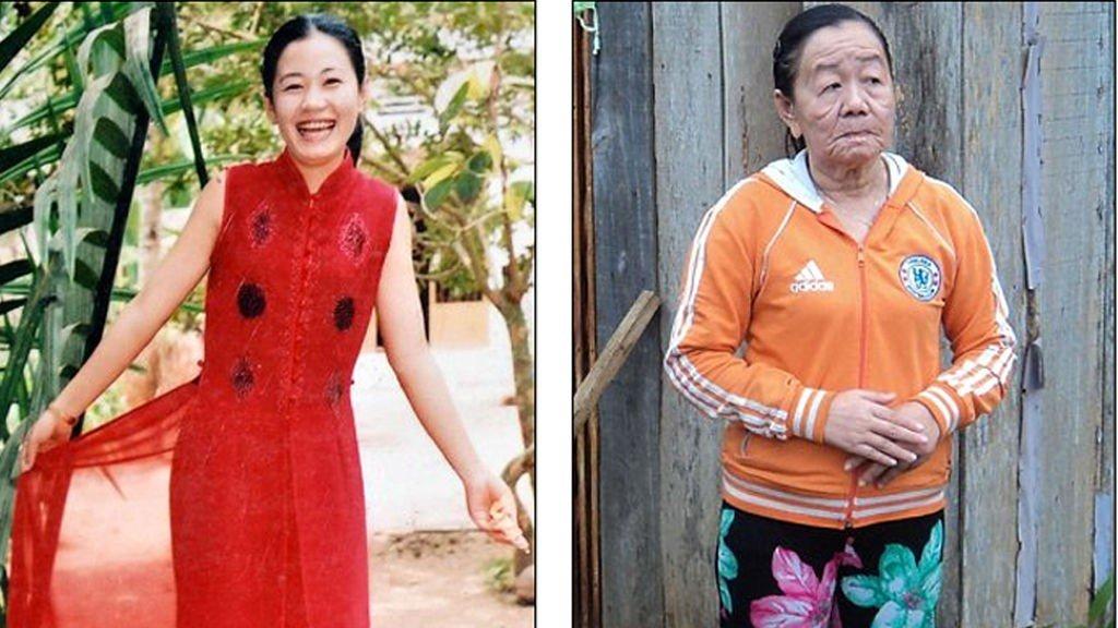 NGUYEN THI PHUONG er rammet av et ukjent syndrom. På bildet til venstre er hun 21 år, på bildet til høyre er hun 26.