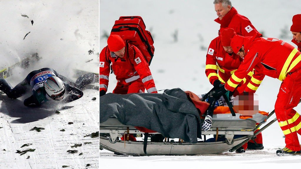 STYGT: Sveitseren Simon Ammann falt stygt under hoppukas avslutningsrenn. Nettavisen har valgt å sensurere Ammanns ansikt.
