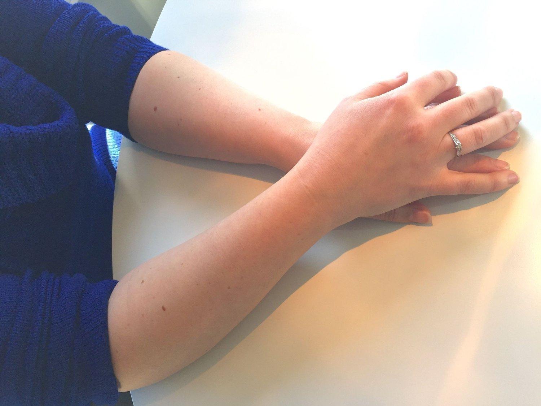 Har du mer enn 11 føflekker på høyre arm kan det bety økt risiko for føflekkreft.