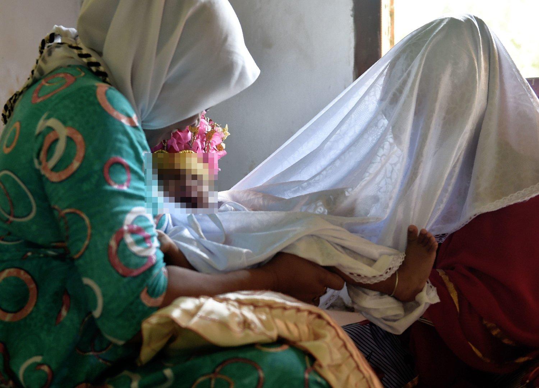 Bilder viser kjønsslemlestelse av et lite jentebarn i Indonesia.